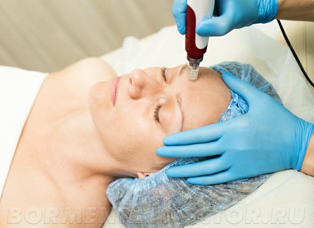 443277463 - Фракционная мезотерапия кожи
