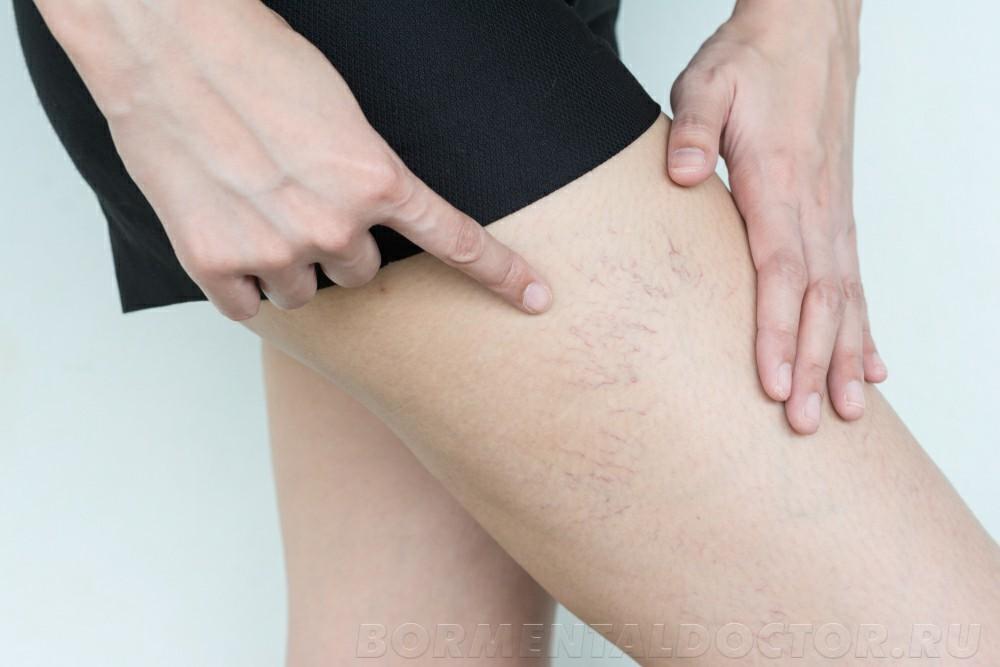 shutterstock 1142335223 - Удаление сосудистых звездочек на ногах