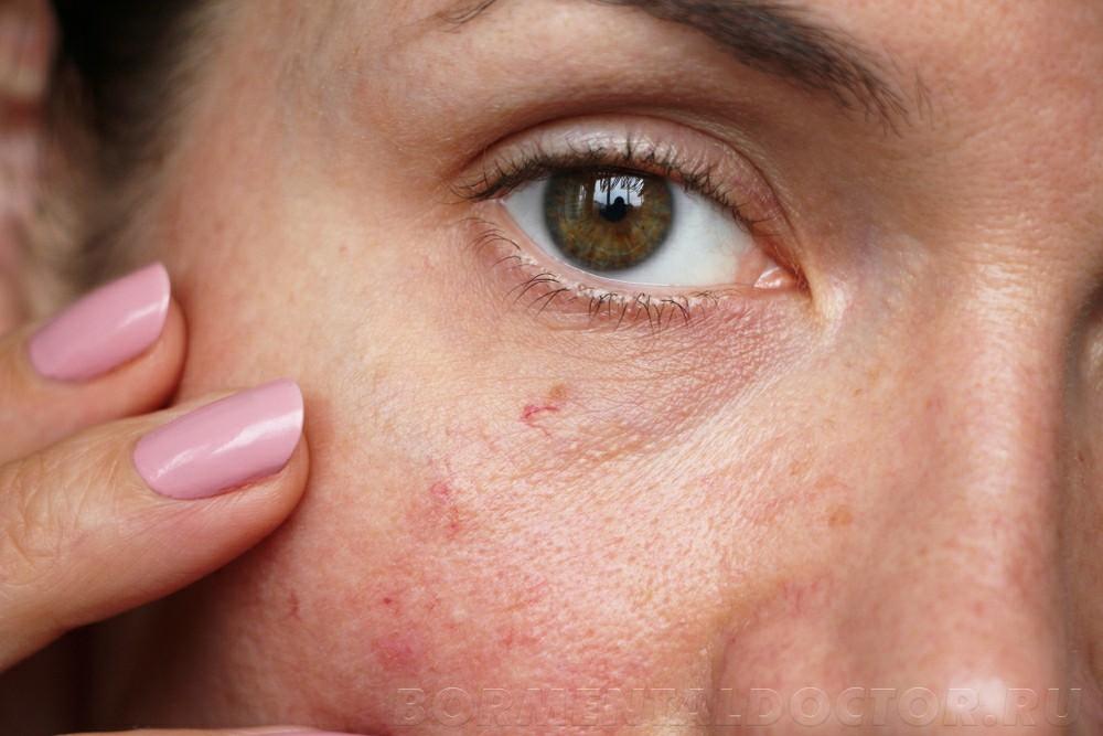 shutterstock 1250541601 - Удаление сосудистых звездочек на лице