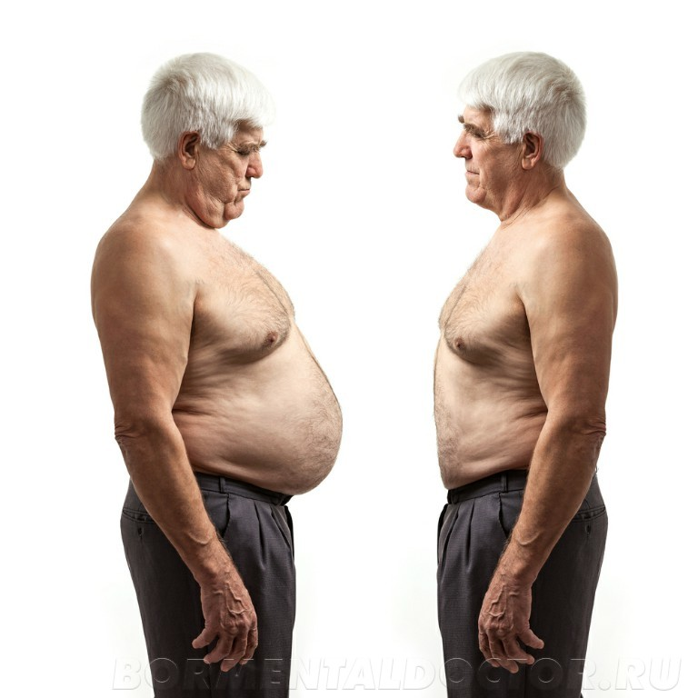 shutterstock 168683693 - Кетогенная диета