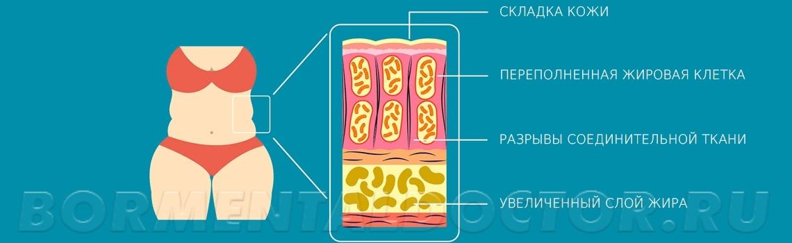fatness types image - Локальные жировые отложения