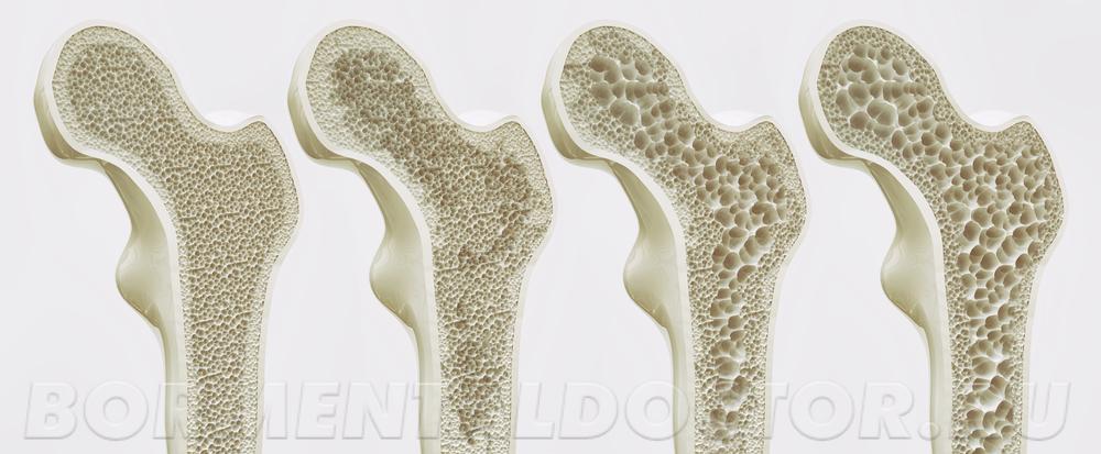 Но как быть с тем, что полные люди реже болеют остеопорозом