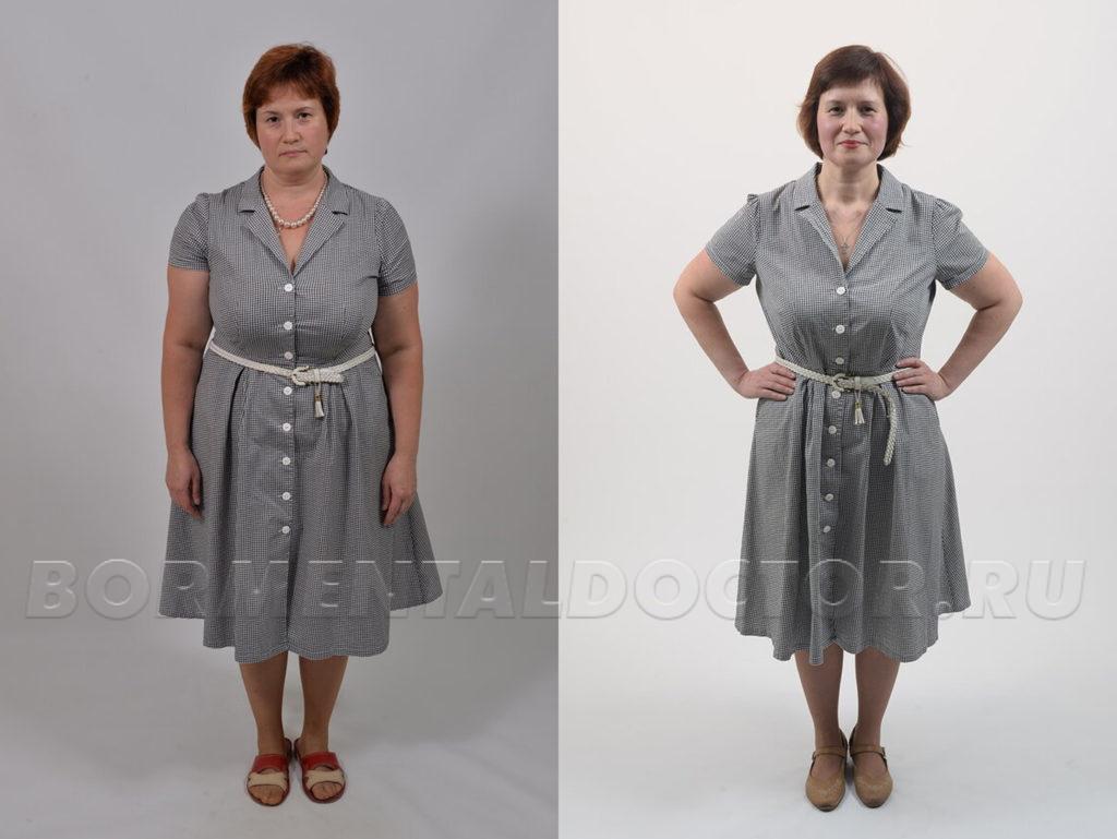 Арбузова-похудение-фото-до-после