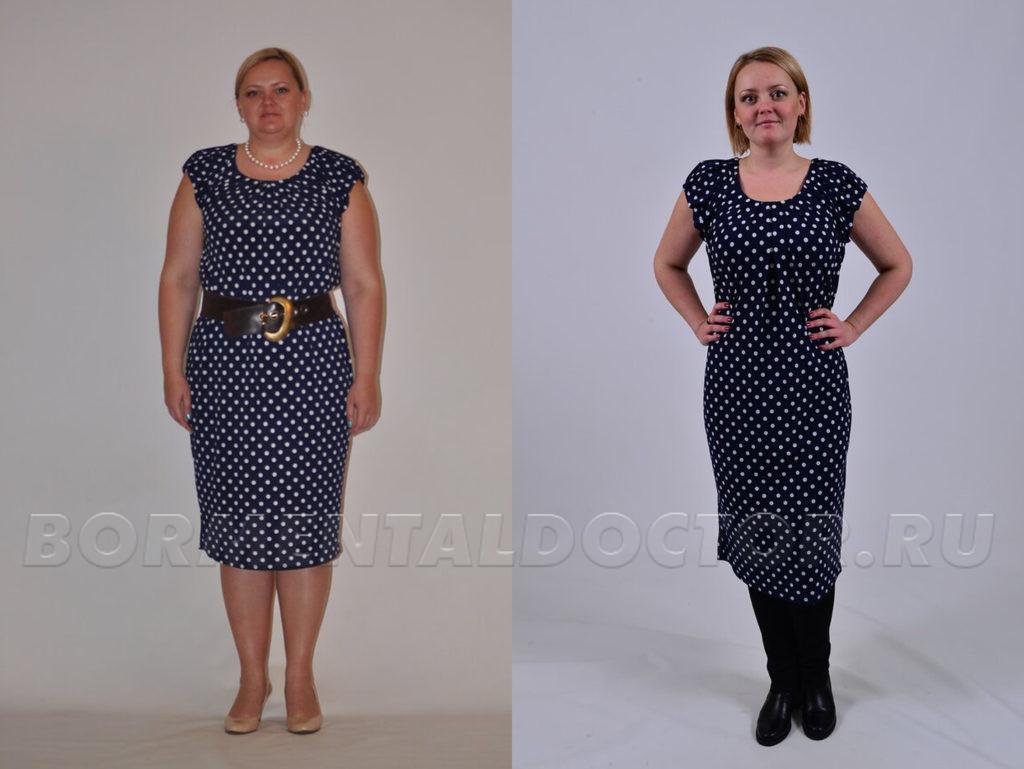 Ефремова похудение до и после