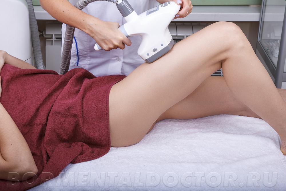 Эффект после LPG массажа