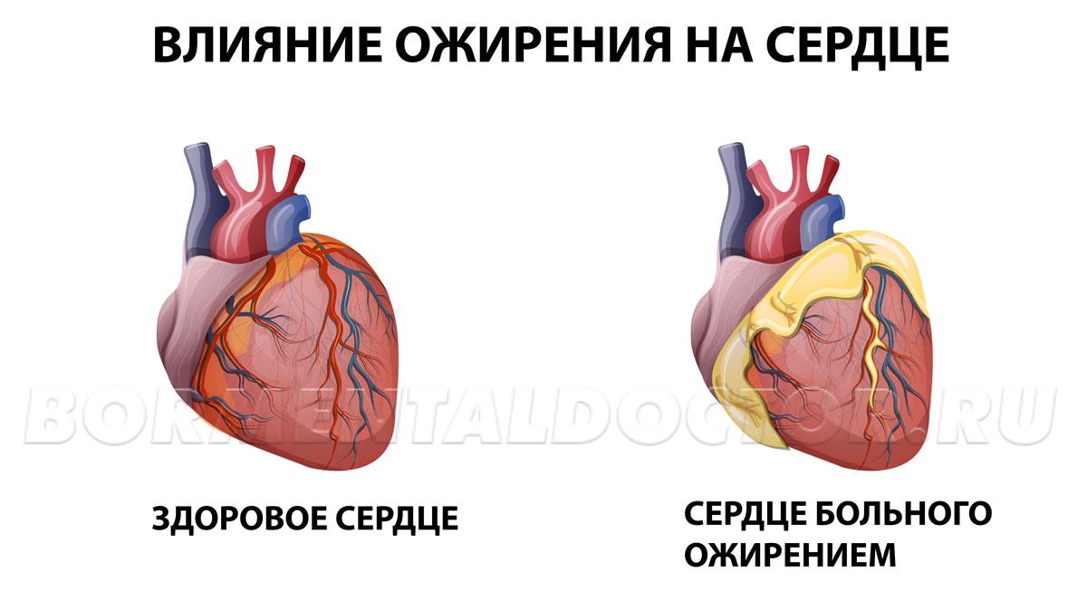 Сердечно-сосудистая система оздоравливается