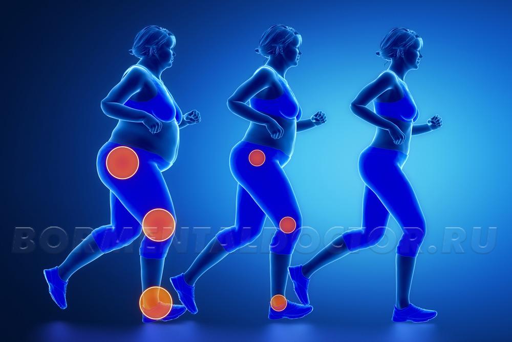 Восстановление суставов после ожирения